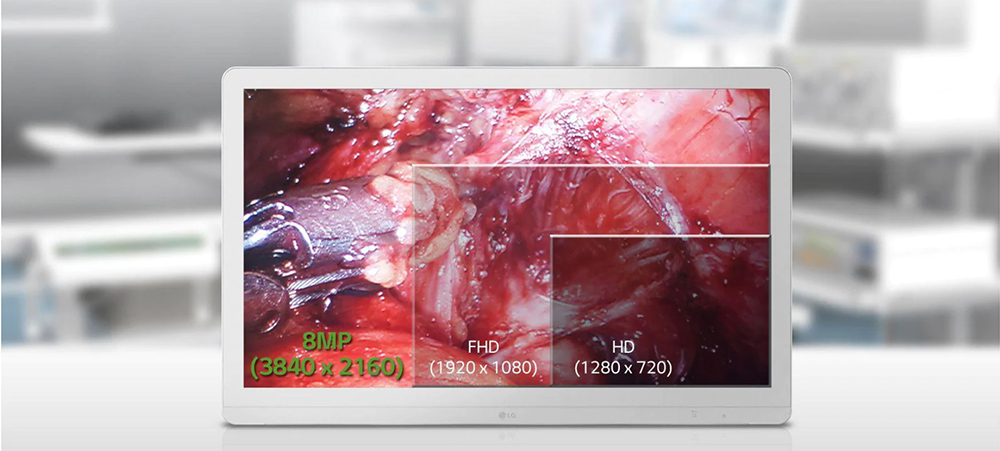 A Display Optimized for the Operating Room